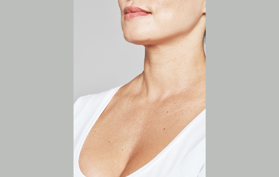 Jenny_Sheleby_Decolletage_BEFORE